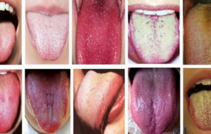 Լեզուն օրգանիզմի հայելին է. ի՞նչ կարող է այն պատմել քո մասին