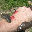 Ինչ է օձի մի կաթիլ թույնն անում մարդու արյան հետ վայրկյանների ընթացքում (տեսանյութ)