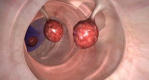 Բժիշկները շոկի մեջ են. ՍԱ ընդամենը 2 օրում սպանում է հաստ աղիքի քաղցկեղի բջիջների 93%-ը