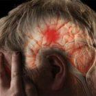 9 կարևոր խորհուրդ գլխուղեղի կաթվածից (ինսուլտ) խուսափելու համար