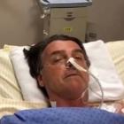 Բրազիլիայի նախագահի թեկնածուին դանակահարել են, նա վիրահատվել է երկու անգամ