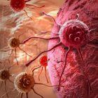 Քաղցկեղի առաջացման գլխավոր պատճառներից մեկը