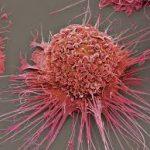 Անհնար է ոչնչացնել քաղցկեղի բոլոր բջիջները, բայց կարելի է կանխել մետաստազները. գիտնականներ