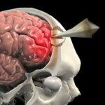 Հայտնաբերվել է գանգուղեղային վնասվածքը բուժելու նոր մեթոդ