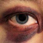 Կոտայքի մարզպետի եղբայրը քաղաքացու աչքին հարվածել է վեցից յոթ անգամ.hraparak.am