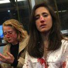 Լոնդոնում դեռահասները ծեծել են իրենց ներկայությամբ համբուրվելուց հրաժարված լեսբիներին