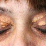 Ի՞նչ լուրջ հիվանդության նախանշան է կոպերի վրա առաջացած դեղին գնդերը